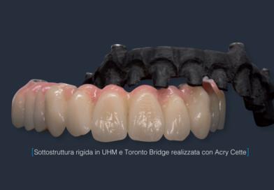 Le applicazioni della fibra di carbonio in campo dentale e le fasi lavorative per la realizzazione di una Toronto Bridge